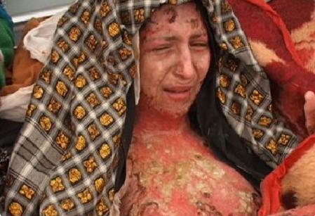 Hủ tục thiêu sống phụ nữ ở Ấn Độ
